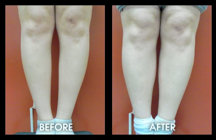 Before and After - Calf-Implants