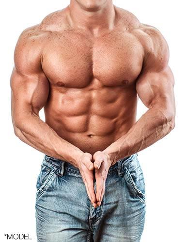 Pec Implants - Male Muscle Plastic Surgery