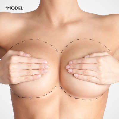 Breast Implants - Plastic Surgery